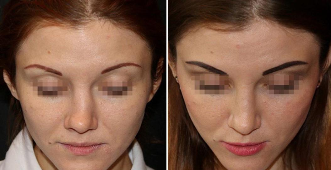 пластическая операция на носу.jpg