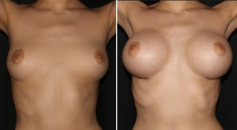 увеличение груди в г. Киев