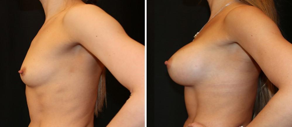 увеличить грудь пластическая операция