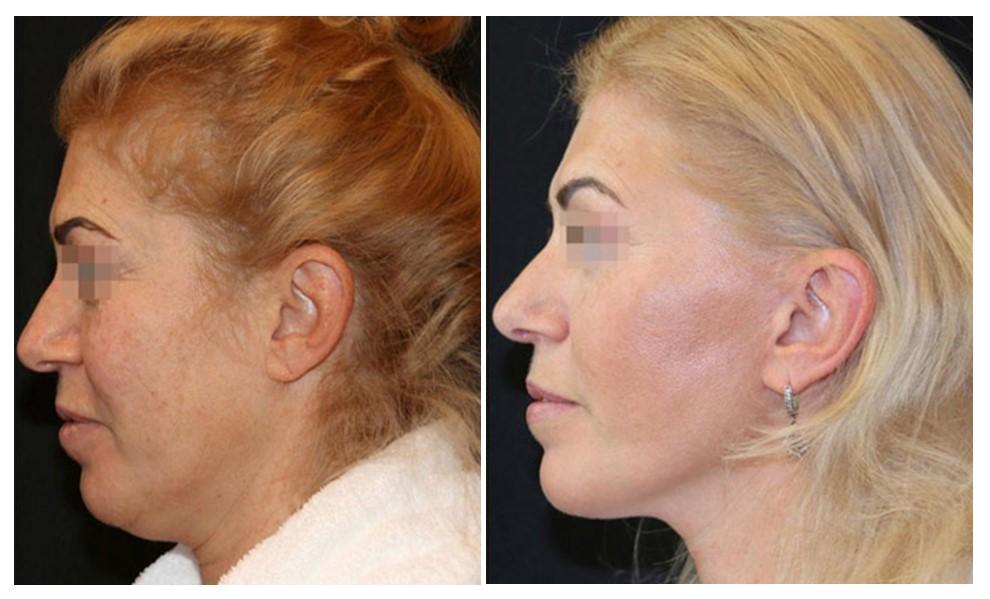 ретидектомия шеи фото до и после