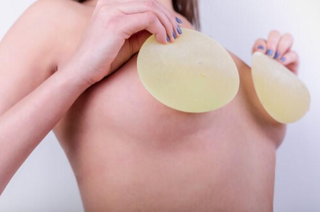 Удаление имплантов молочных желез фото до и после