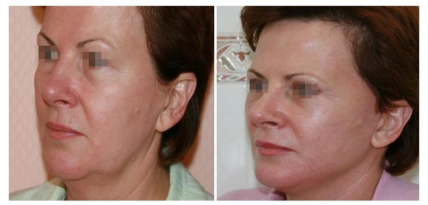 ритидэктомия лба фото до и после