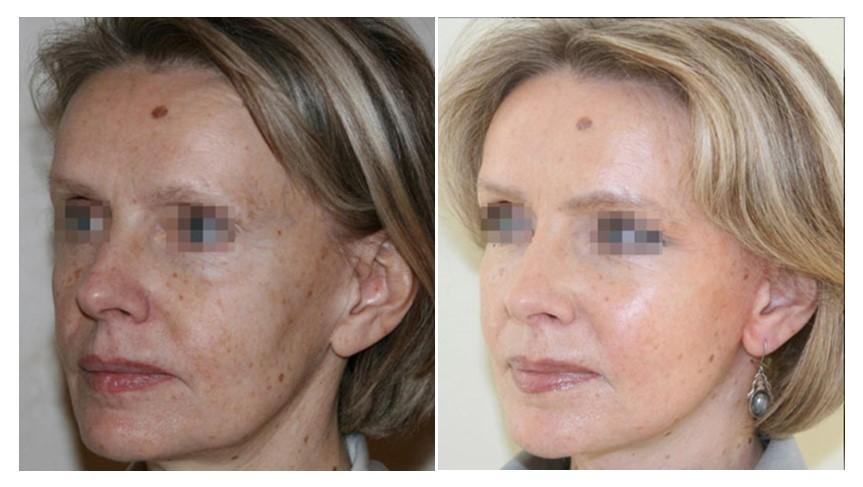 фото до и после ритидэктомии лба