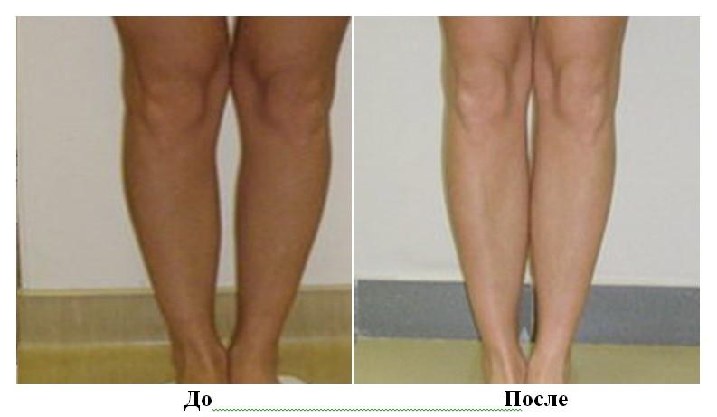 круропластика до и после фото