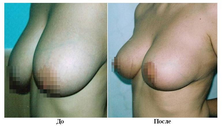 контурная маммопластика фото до и после