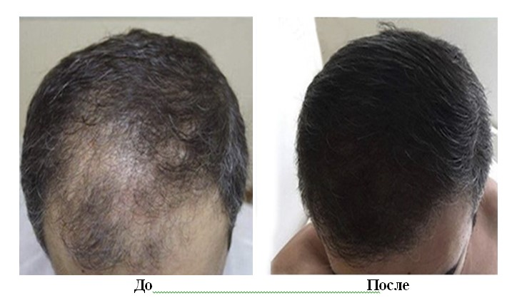 пересадка волос фото