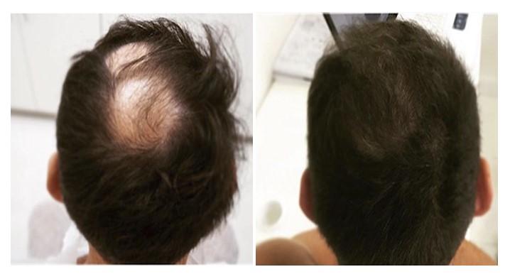 фото пересадки волос фото до и после