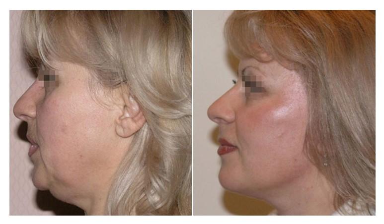 пластика шеи фото до и после