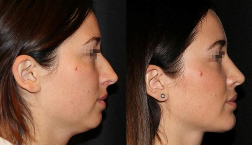 пластика носа у андрея харькова фото